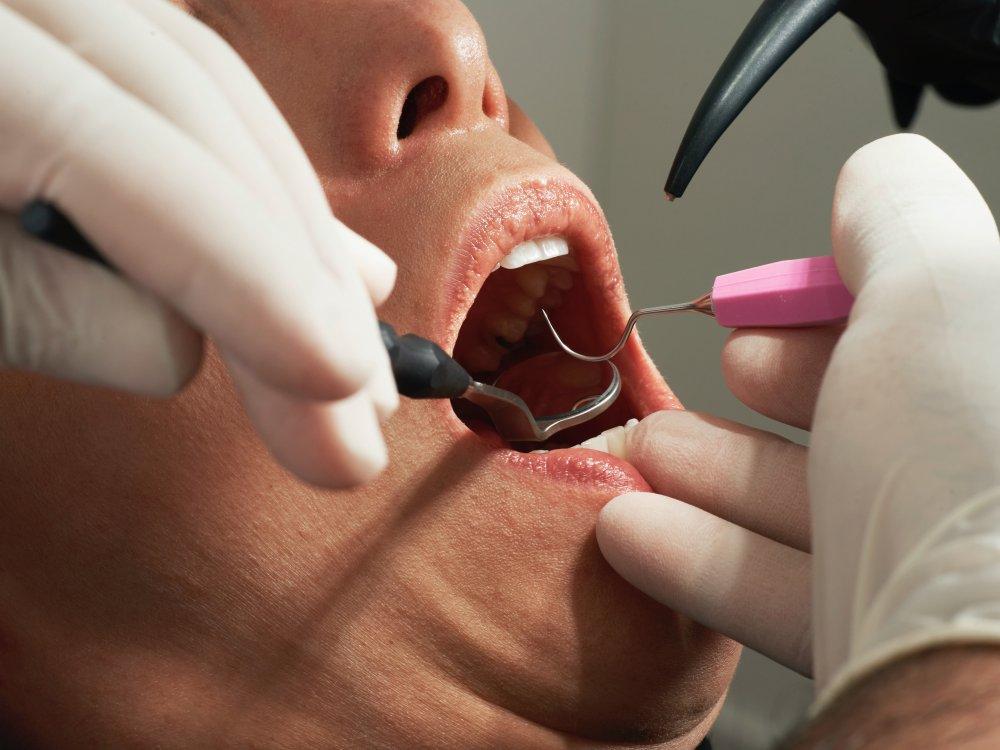 Tandläkare Järfälla förebygger din tandvärk
